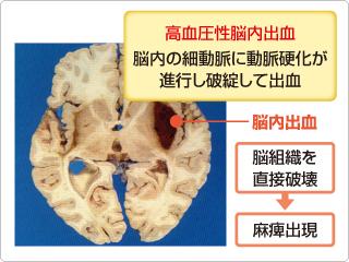 高血圧性脳内出血 無症候性脳内病変(かくれ脳内病変) 脳の中でも、あまり症状に関連しない...